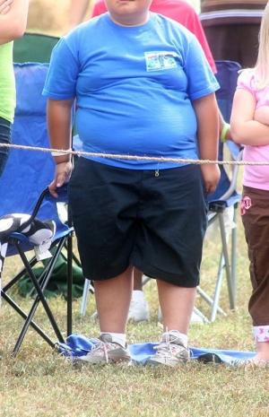 Boy with obesity 72dpi